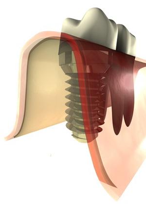 Graphik mit Zahnimplantat und echtem Zahn